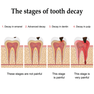 tooth decay stages in dental care